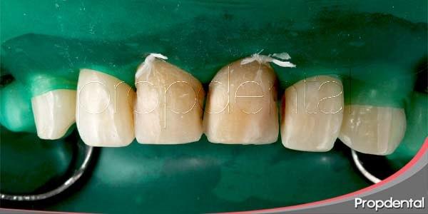 colocación carilla de composite
