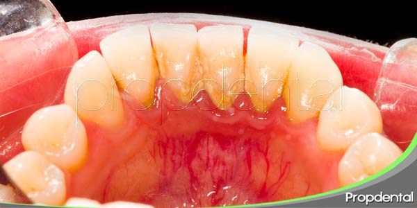 ¿cómo puedo eliminar la placa dental?