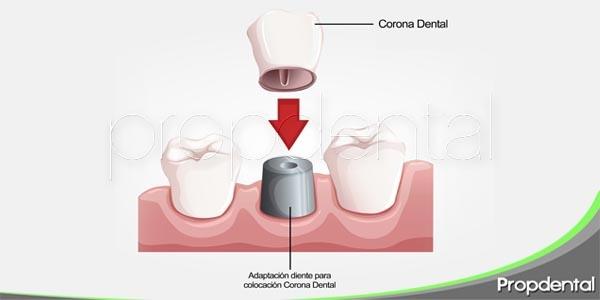 concepto y función de la corona dental