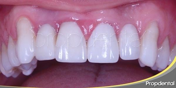 dientes naturales con implantes dentales