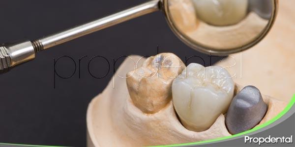 diferentes tipos de coronas dentales