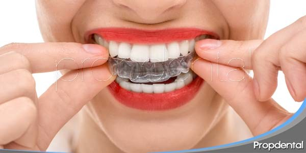 dudas sobre la alineación dental