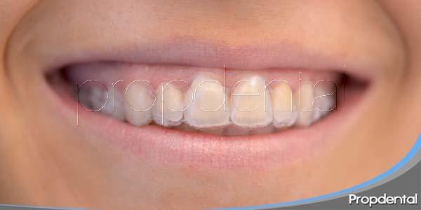 enderezar los dientes de forma invisible