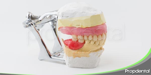 evaluando la oclusión dental
