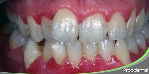gingivitis marginal crónica