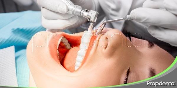 higiene dental y limpieza profesional
