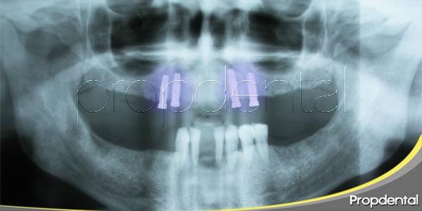 implantes endo-óseos