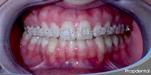 inflamación de encías durante la ortodoncia