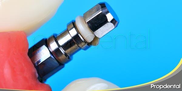 inserción del implante en cuatro pasos