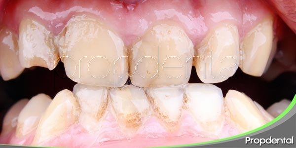 la gingivitis y la periodontitis