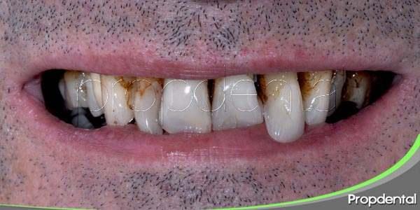 la halitosis es un signo de otros problemas orales