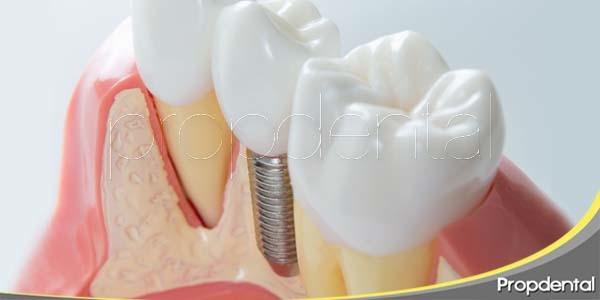 los implantes dentales frenan la pérdida ósea