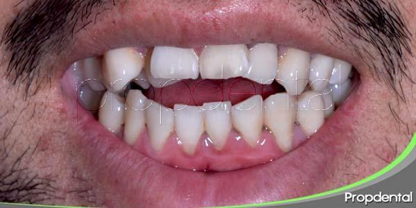 malformaciones maxilares y mandibulares