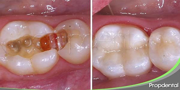 obturación dental estética
