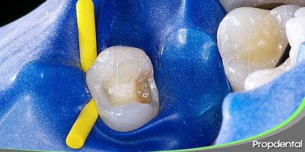 obturación dental