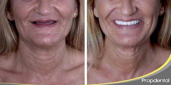 opciones de tratamiento con implantes dentales