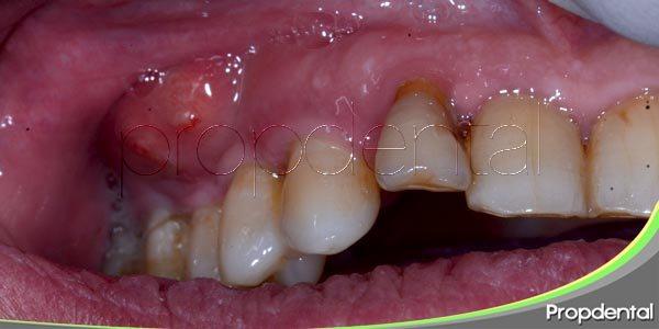 patologías derivadas de la infección dental