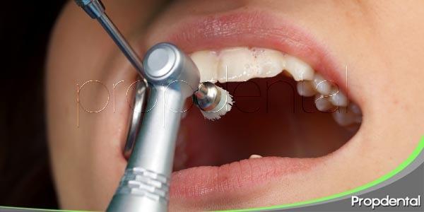 proceso de la limpieza dental profesional