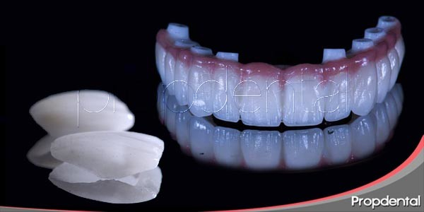 prótesis dentales de porcelana