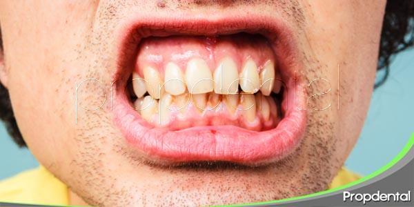 ¿qué es la disfunción temporomandibular?
