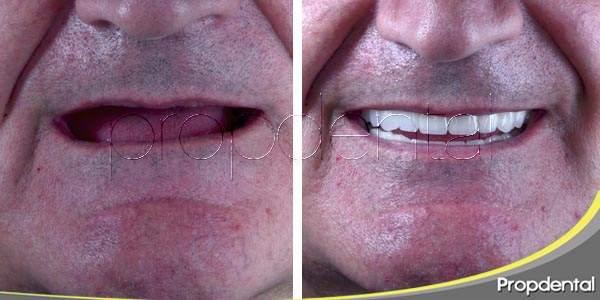 ¿quieres recuperar la sonrisa con implantes?