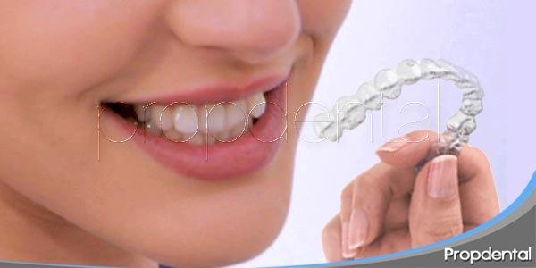 solución para dientes torcidos