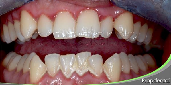 soluciones para el apiñamiento dental