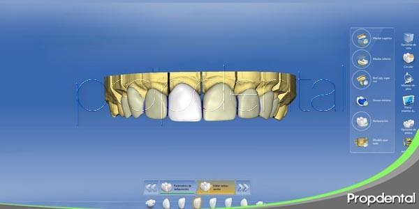 tecnología cad/cam en odontología