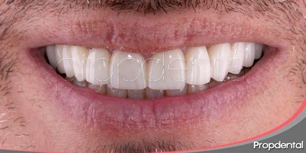 tratamientos estéticos para una sonrisa perfecta