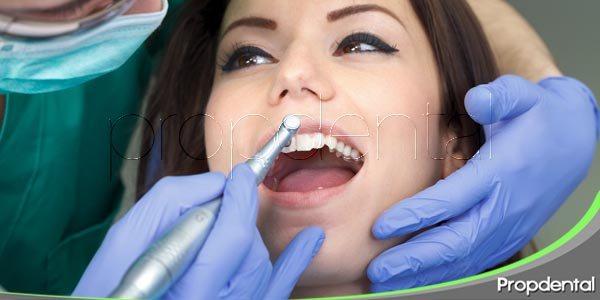 variedades de limpieza dental