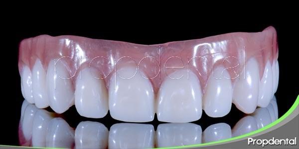 ventaja de la prótesis odontológica