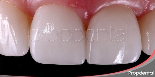 3 tratamientos de odontología estética, un objetivo