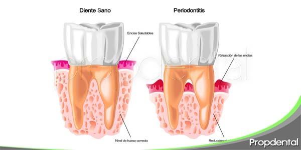 9 síntomas de la enfermedad periodontal