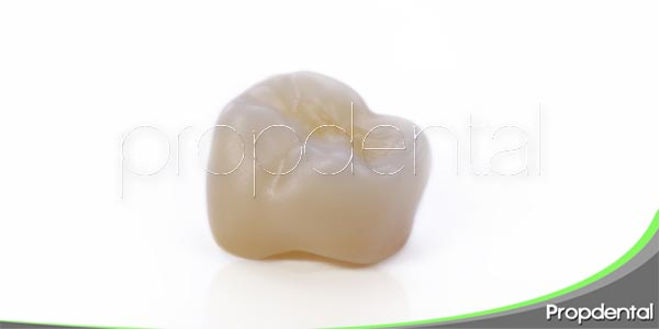características de los tipos de corona dental