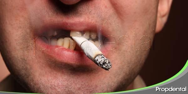 causas de la enfermedad periodontal