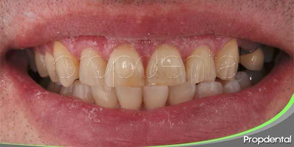 causas del oscurecimiento de la sonrisa