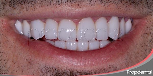 coronas de zirconio para una sonrisa natural