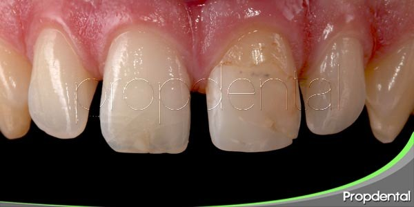 dientes agrietados