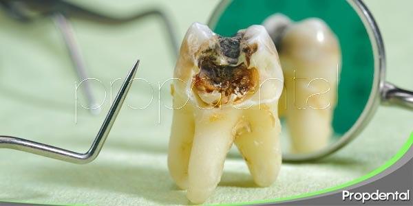 el avance de la caries dental
