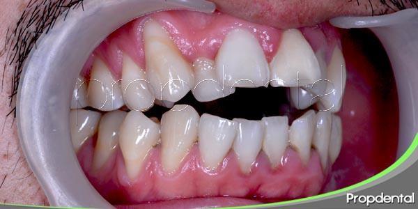 el examen periodontal