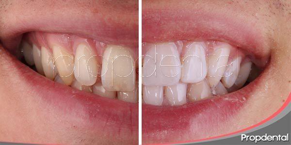 el top 10 de los tratamientos de estética dental