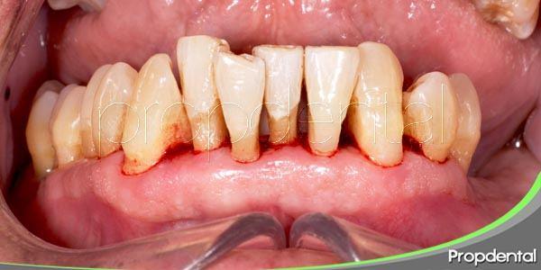 evitar la enfermedad periodontal