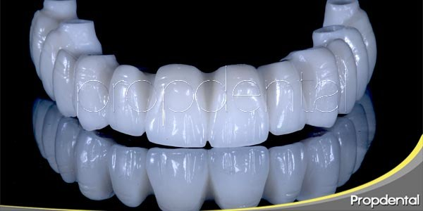 implantes dentales de zirconio