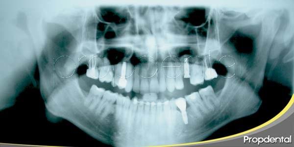 inserción del implante dental en cuatro pasos