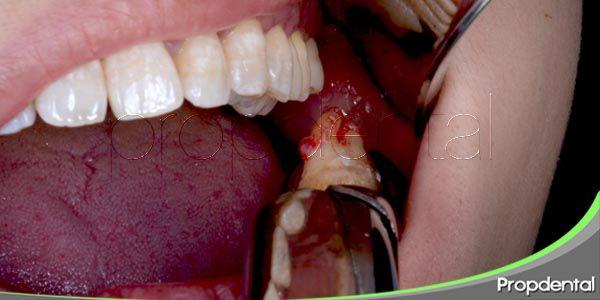 instrucciones post-cirugía dental: exodoncia