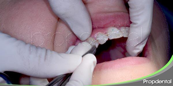 la diferencia entre un dentista y un ortodoncista