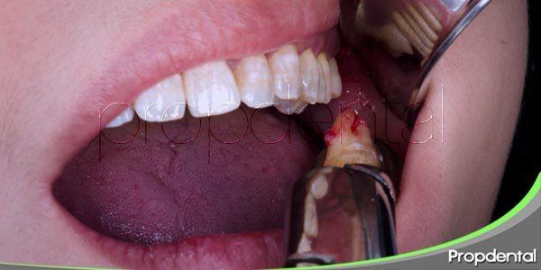 las extracciones dentales