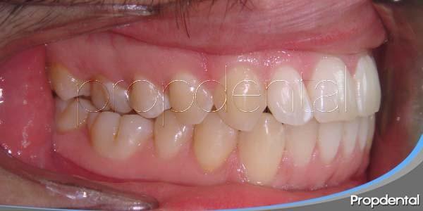 manchas blancas tras la ortodoncia