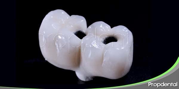 preguntas frecuentes acerca de la corona dental