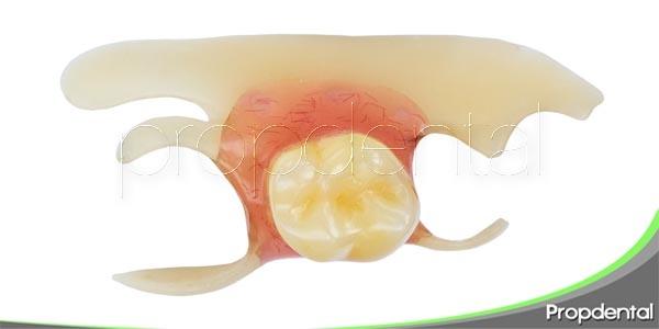 prótesis dentales temporales para adolescentes